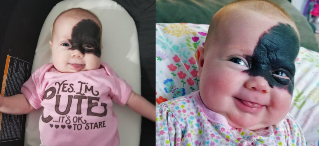 This Baby Has An Amazing Superhero Style Birthmark