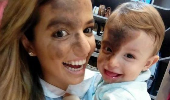 Proud Mum Paints Birthmark On Her Face To Match Baby Son's